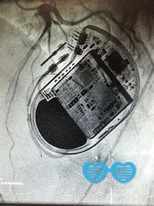 Herzschrittmacher Ambulanz