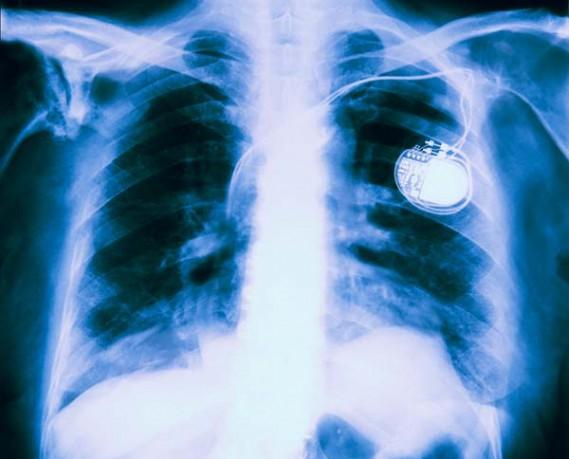 Herzschrittmacher Röntgenbild